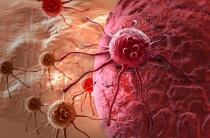 Потливость при онкологии: причины и симптомы