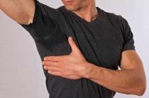 Основные причины гипергидроза подмышек