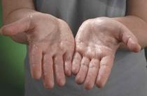 Основные причины гипергидроза ладоней
