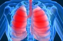 Потливость при пневмонии: причины, симптомы, лечение