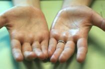 Лечение потливости ладоней: все лучшие методы народной и официальной медицины