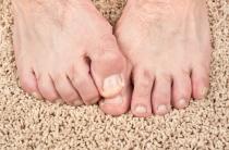 Базовые причины потливости ног у мужчин