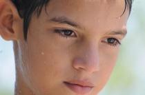 Повышенная потливость у ребенка 10-ти лет: причины, диагностика, лечение