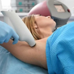 Лечение гипергидроза лазером: все особенности процедуры и таблица сравнения прочих методик